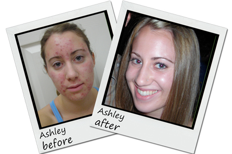 Exposed-Skin-Care-Before-And-After