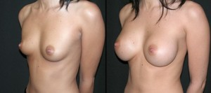 Breast-Aug-4-B-553x245