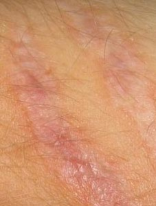 what-causes-scar-tissue